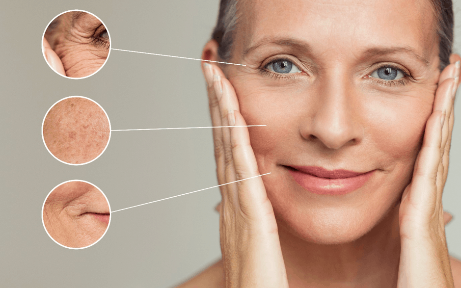 Anti-Wrinkle and Facial Aesthetics
