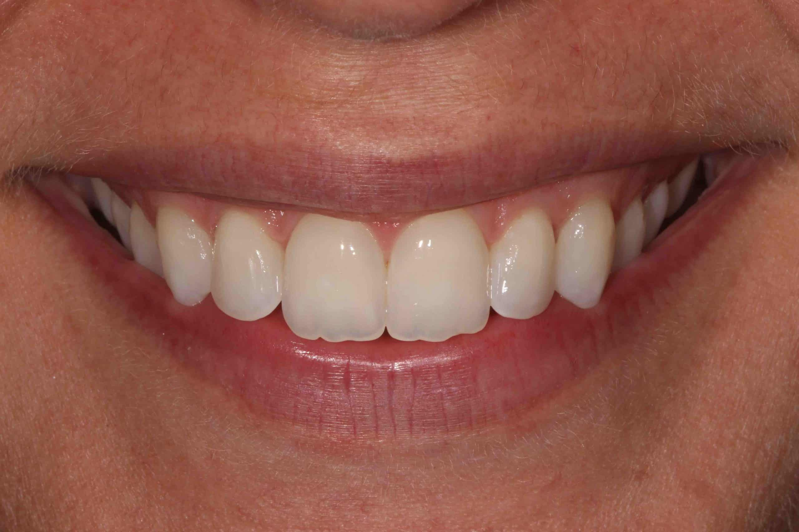 Invisalign After Treatment 1