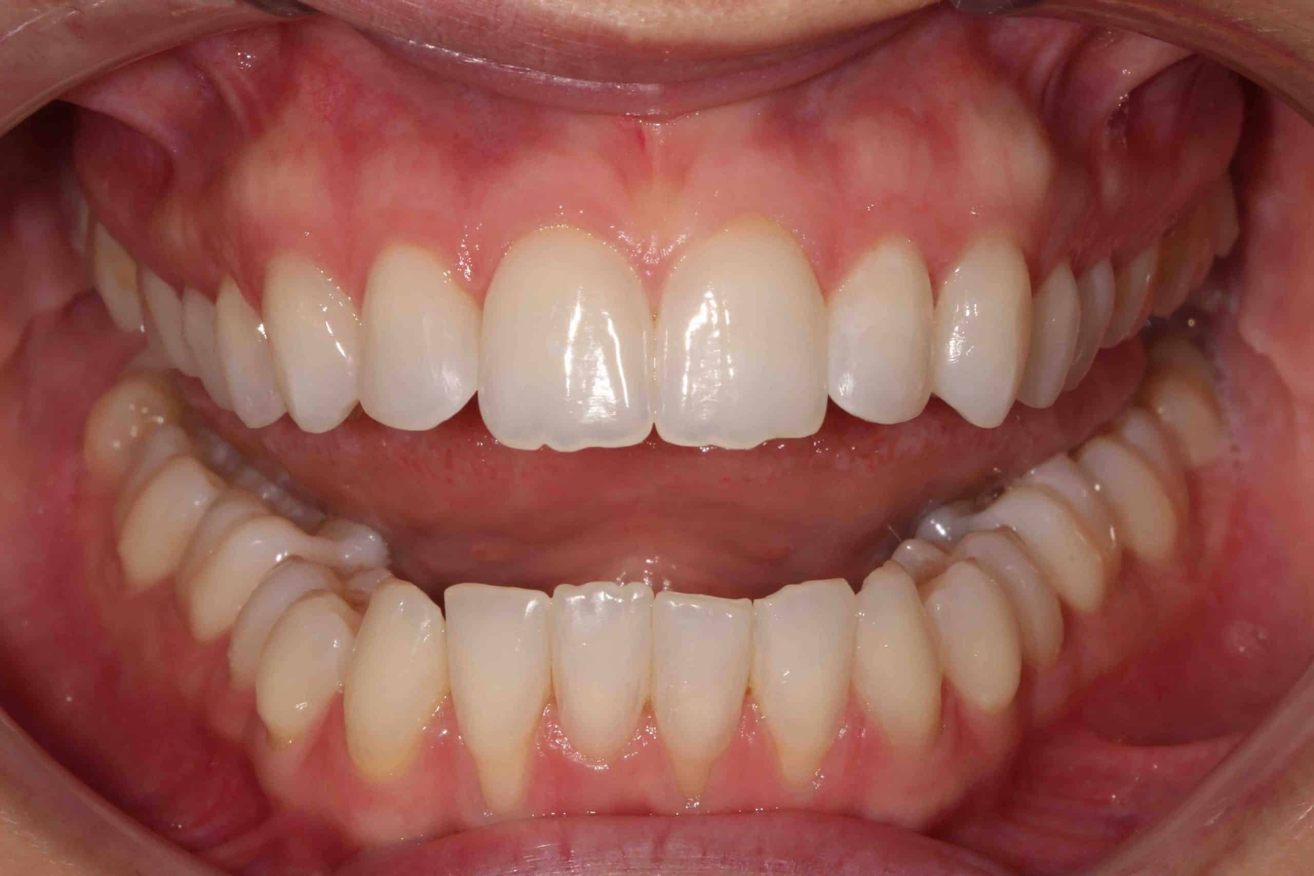 Invisalign After Treatment 2