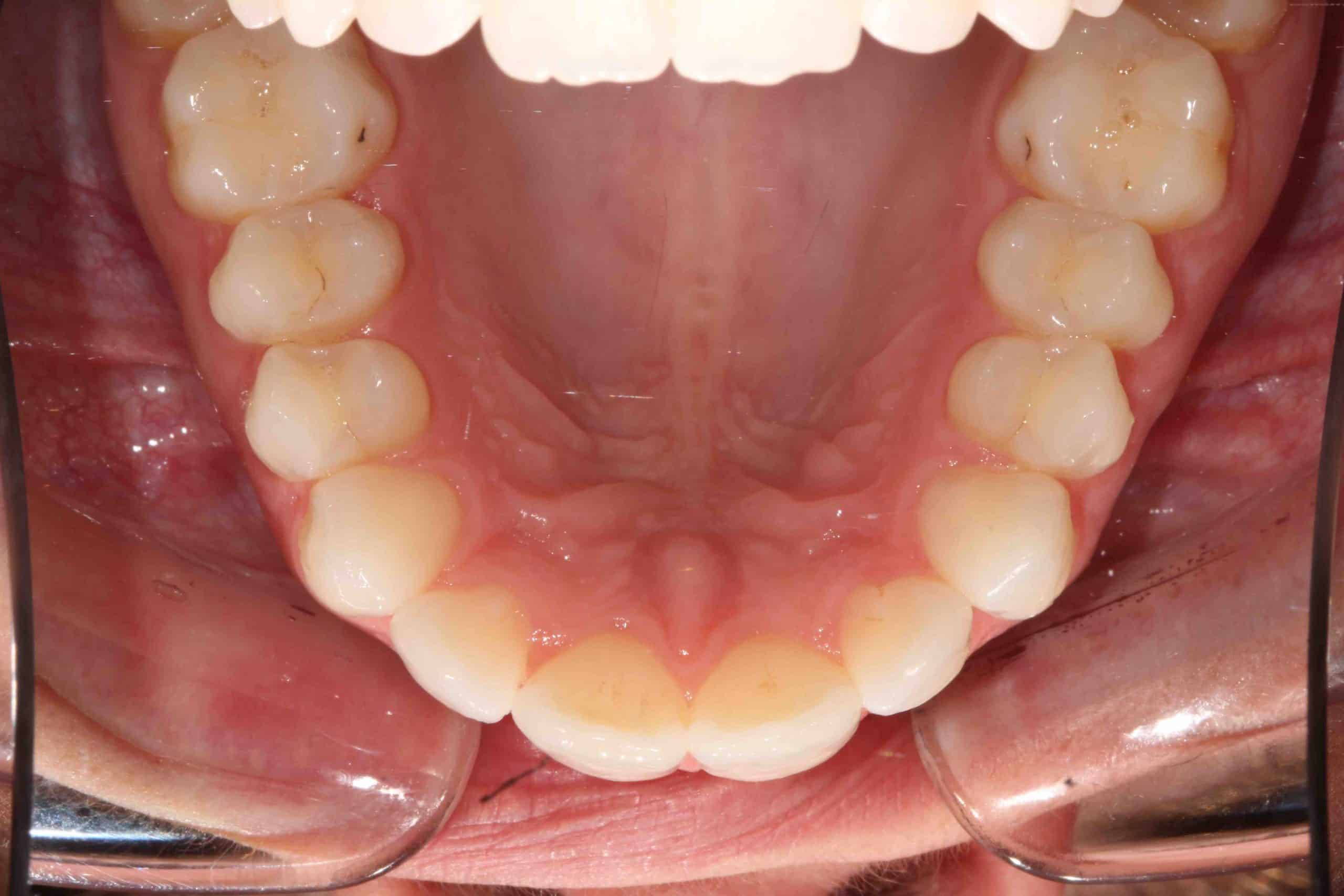 Invisalign After Treatment 3