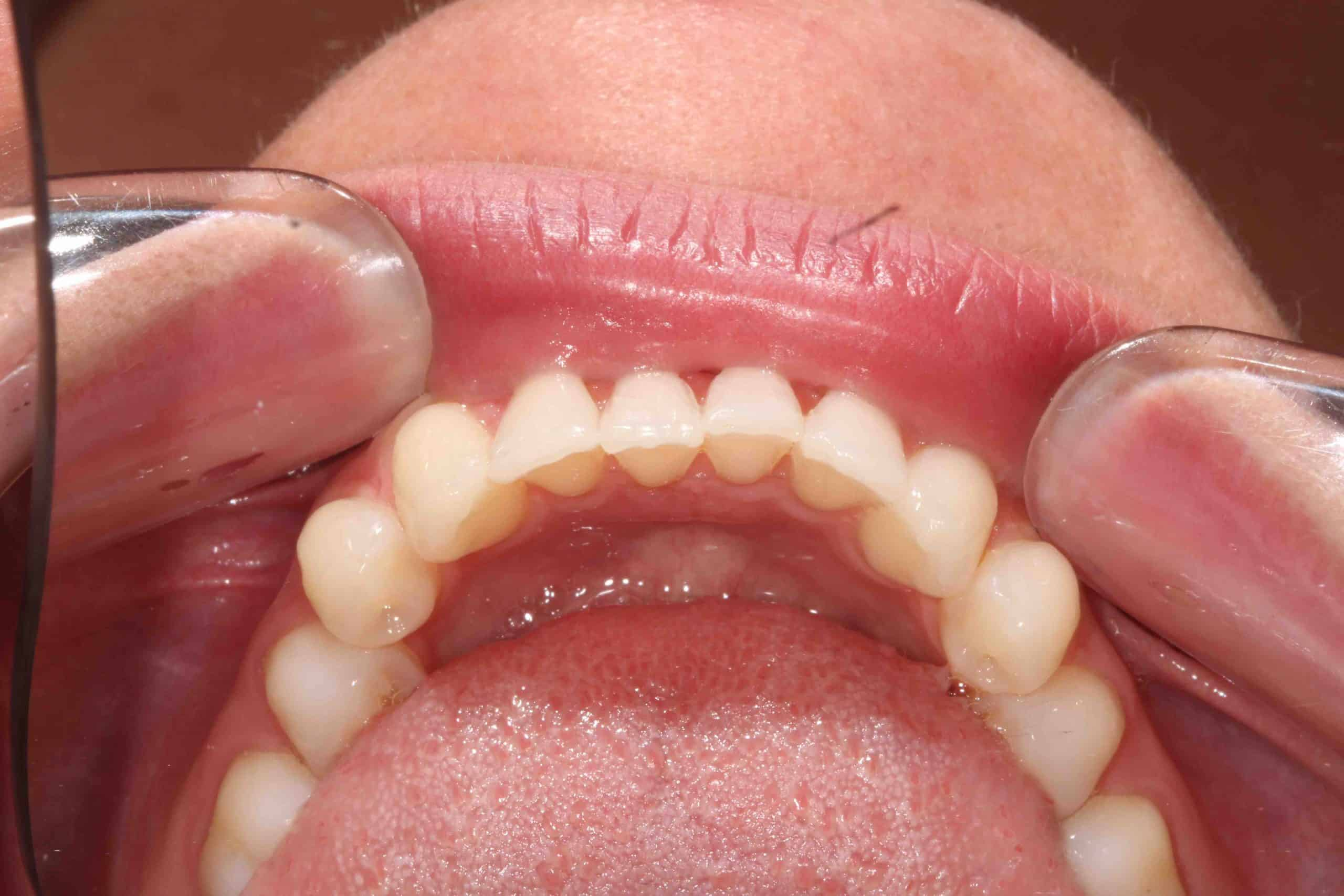 Invisalign After Treatment 4