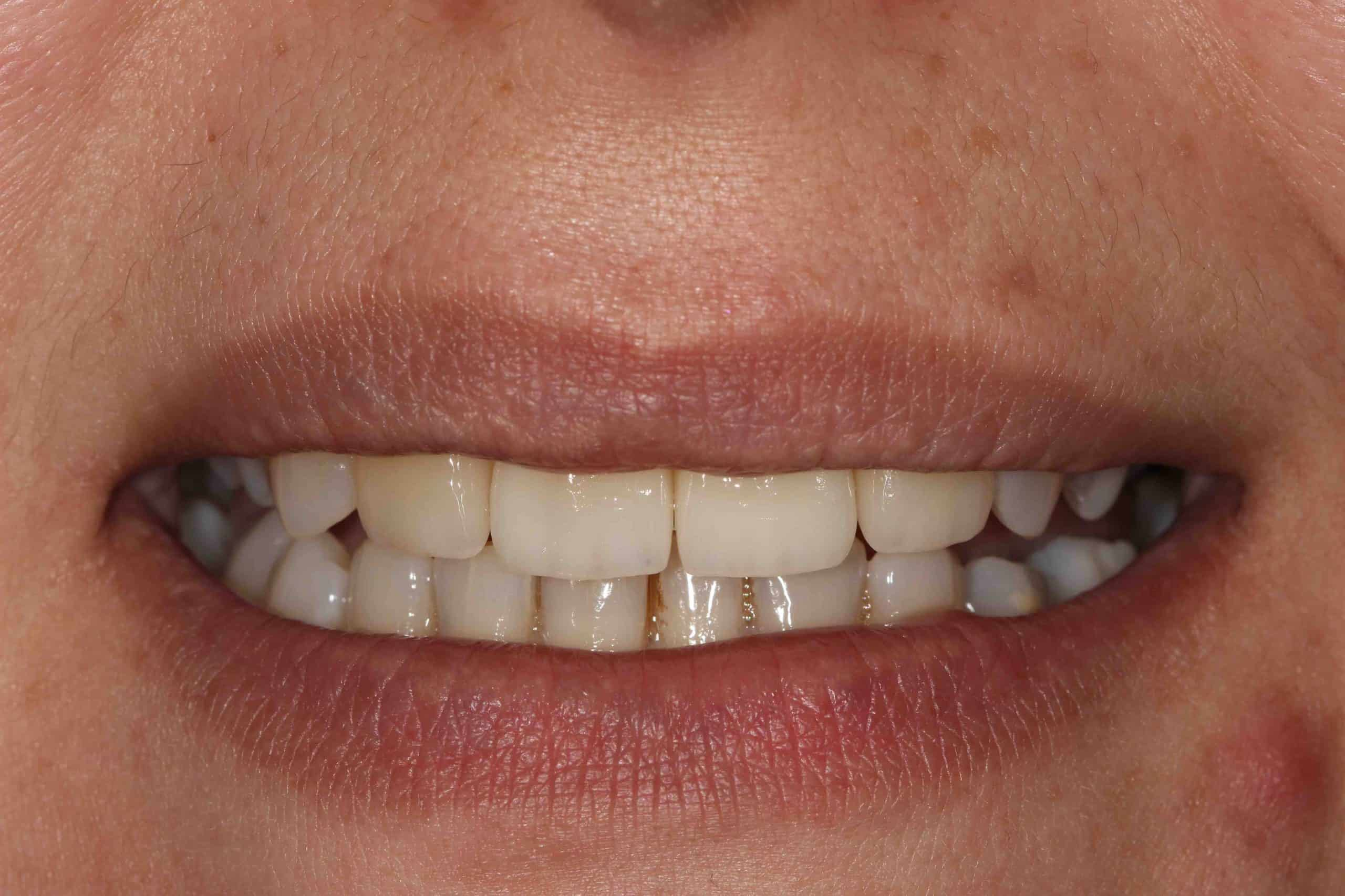 Smile Makeover Post-Treatment 1 - Example 2