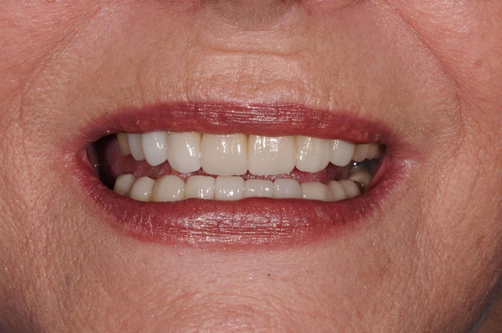 Smile Makeover Post-Treatment 1