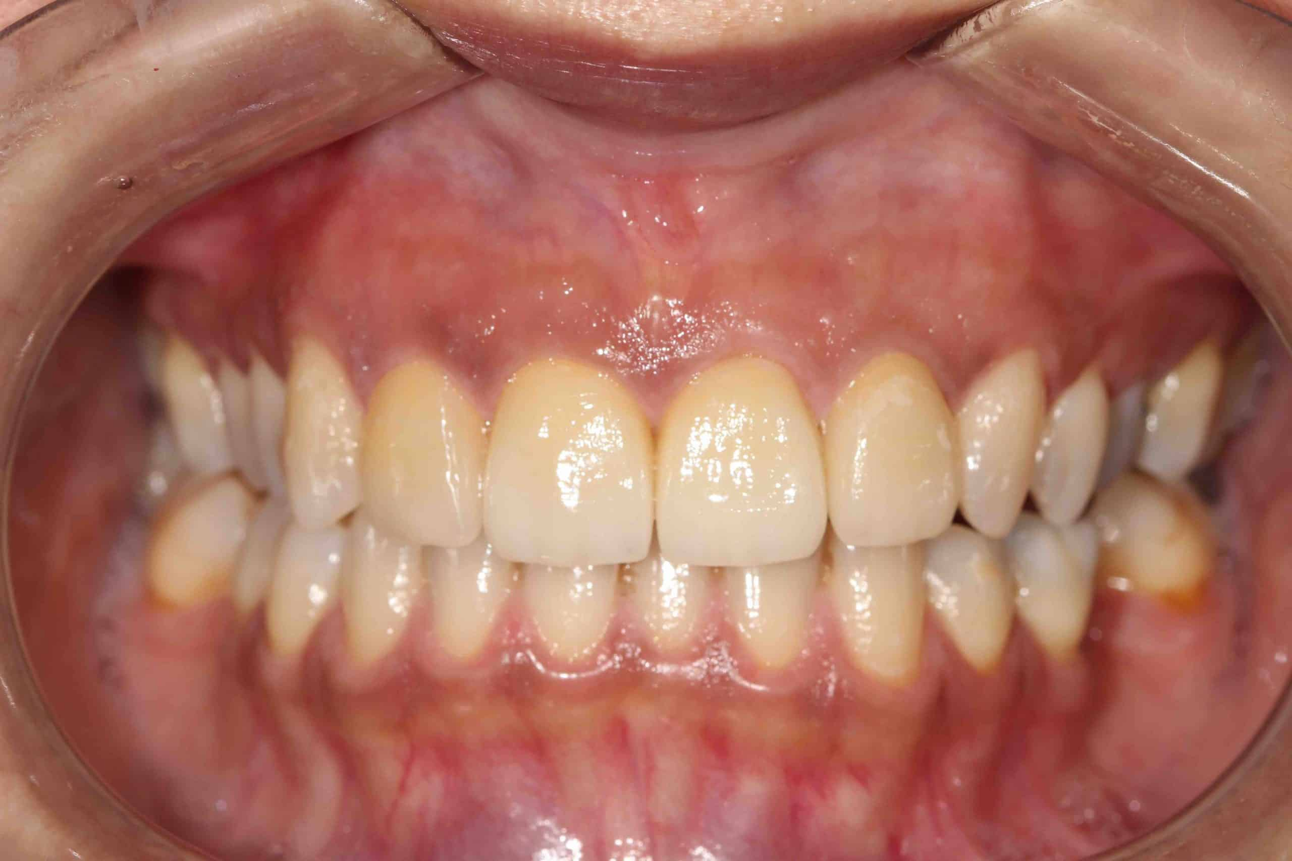 Smile Makeover Post-Treatment 2 - Example 2
