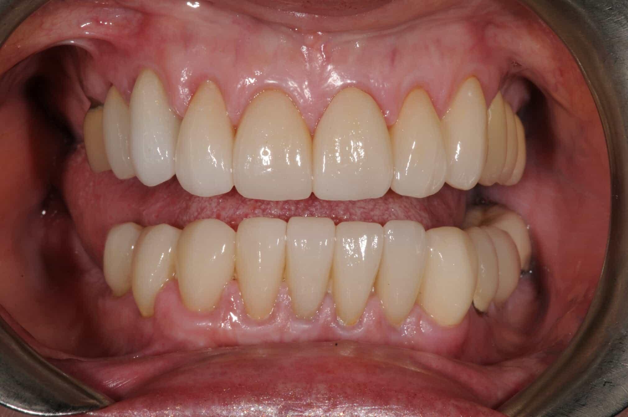 Smile Makeover Post-Treatment 2