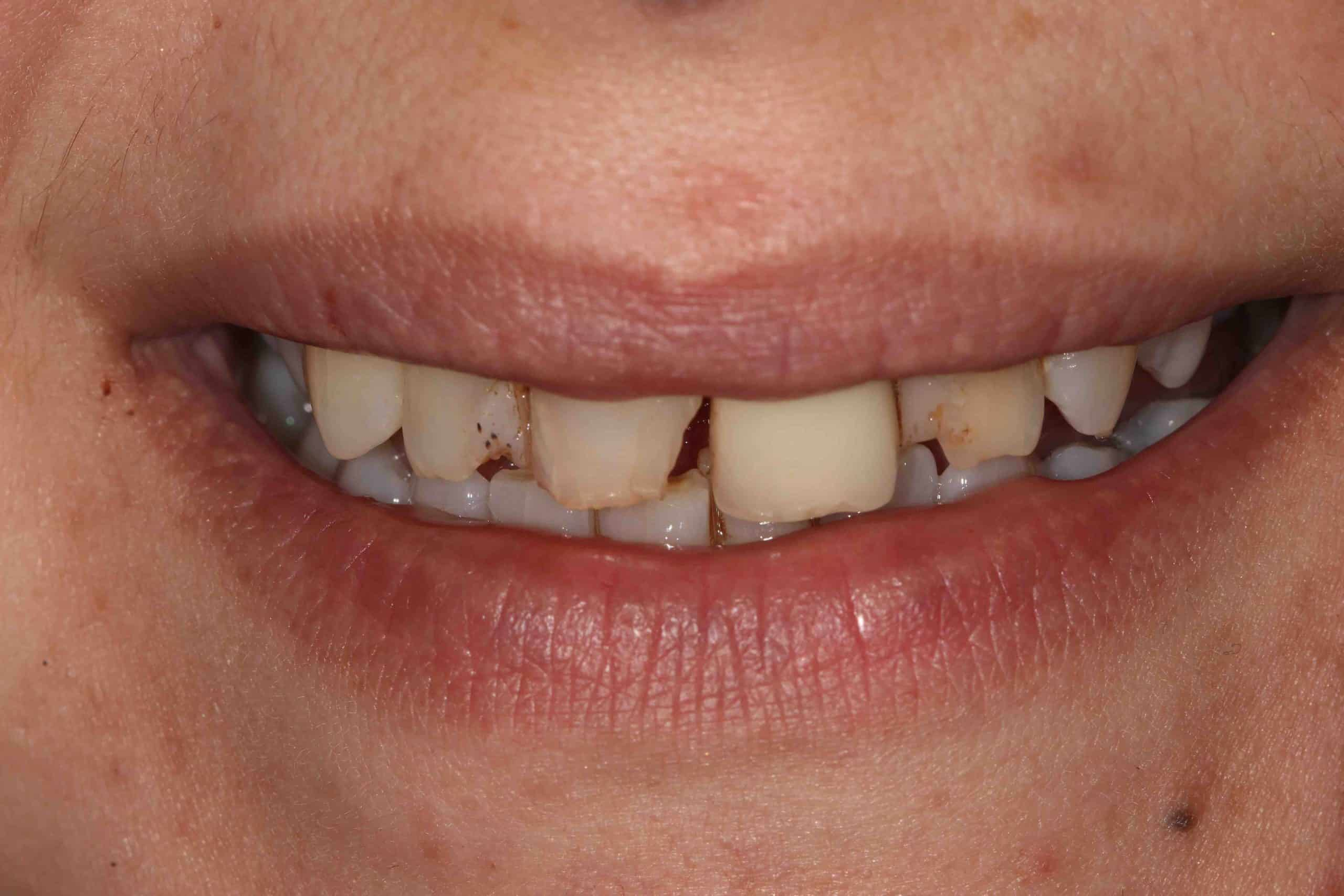 Smile Makeover Pre-Treatment 1 - Example 2