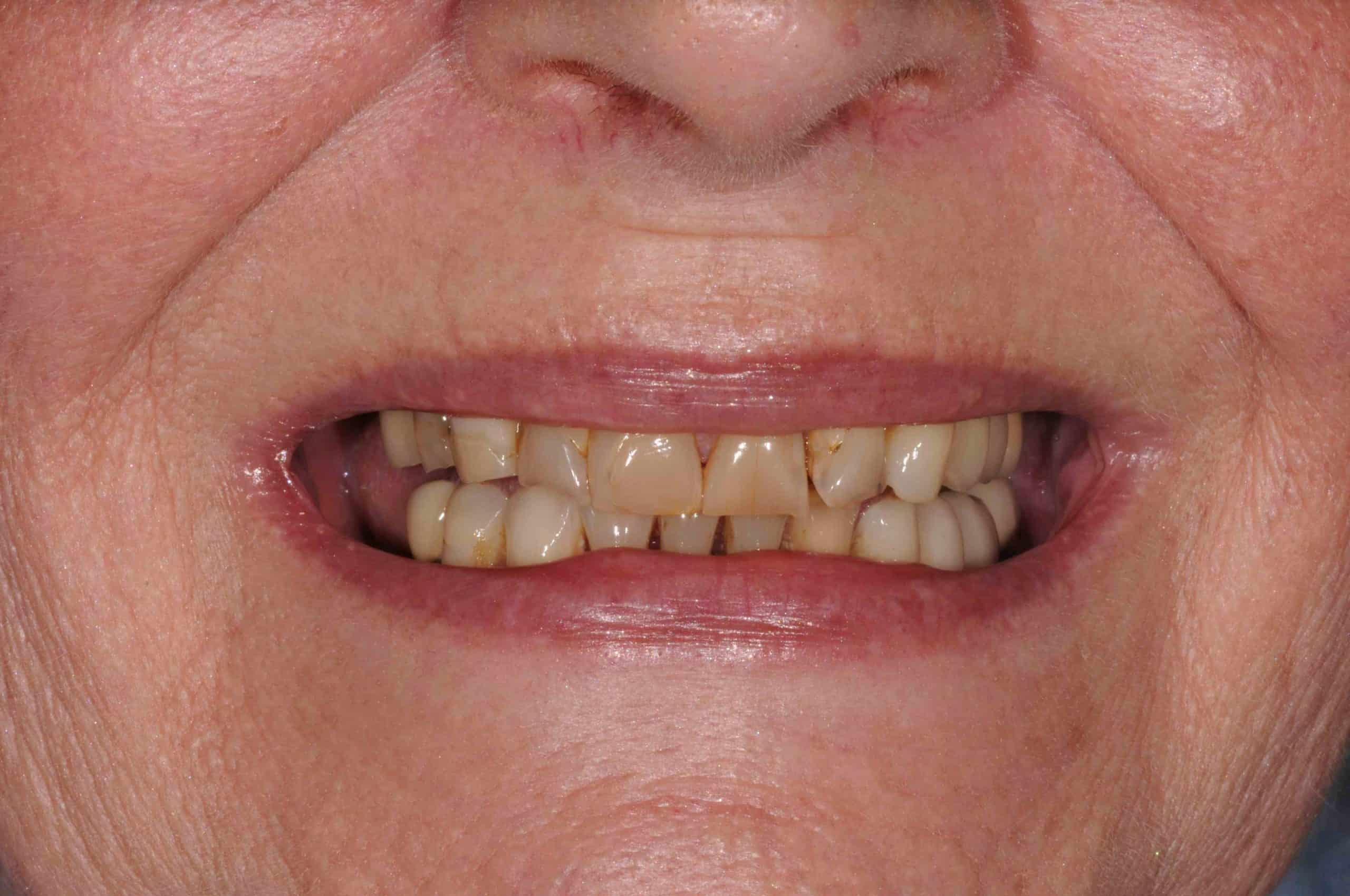 Smile Makeover Pre-Treatment 1